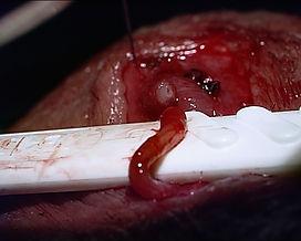 vasovasostomía microquirúrgica