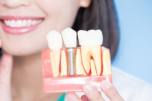 implante-dentario_edited.jpg