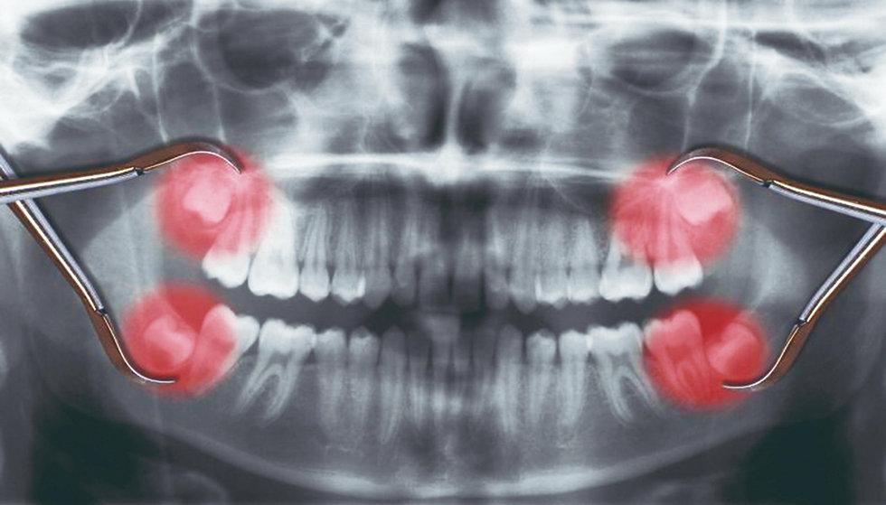 dente-siso-porque-e-importante-extrai-lo