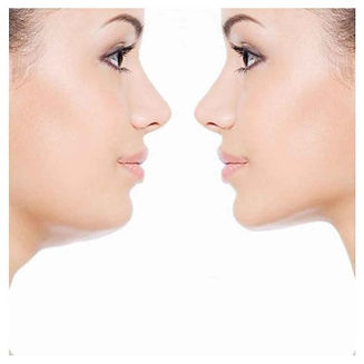 Casal-Dentista-Curso-Lip-Lift-Alectomia-