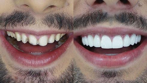 2-lente-de-contato-dental.jpg