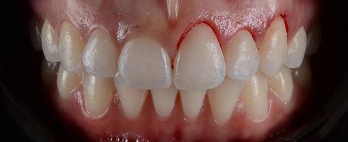 gengivoplastia-e1532025267252.jpg