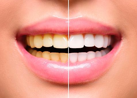 Clareamento-Dental-Antes-e-Depois-1024x7