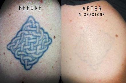tattoo_laser_removal_delhi.jpg