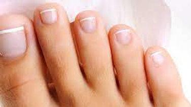 Réparation ongles pieds avec gel (/ unité)