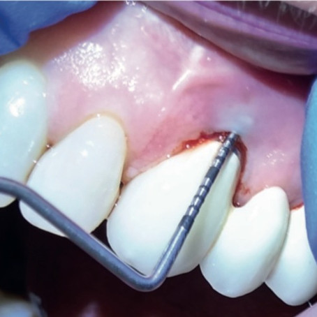 Implant Care and Maintenance