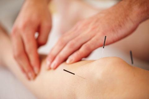 Surrey Acupuncture