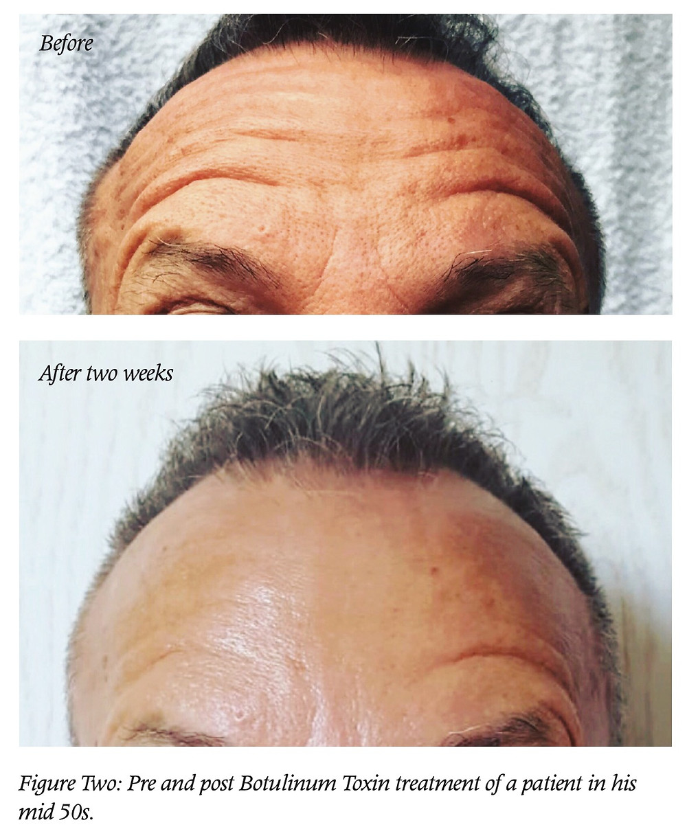 Pre and post Botulinum Toxin treatment on a patient in his mid 50s. Both pictures taken with patient raising his eyebrows