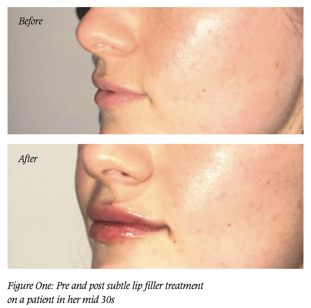 Figure One: Pre and post subtle lip filler treatment on a patient in her mid 30s