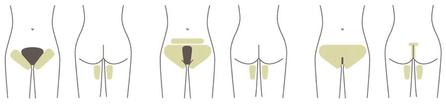 Guide to Bikini/Brazilian zones