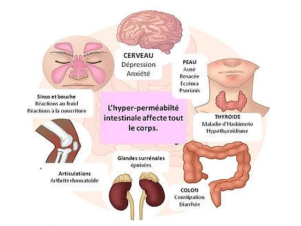 Syndrome d'intestin perméable Montréal