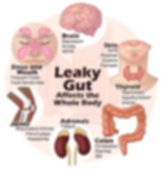 Leaky Gut Syndrome Montreal