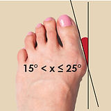 G2 - Bunion -  middle stage-01.jpg