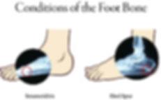 Foot bone conditions.jpg