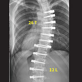 G4 - After spine surgery (internal fixat