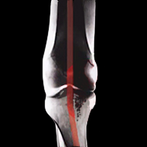 Knee xray 2 - square.png