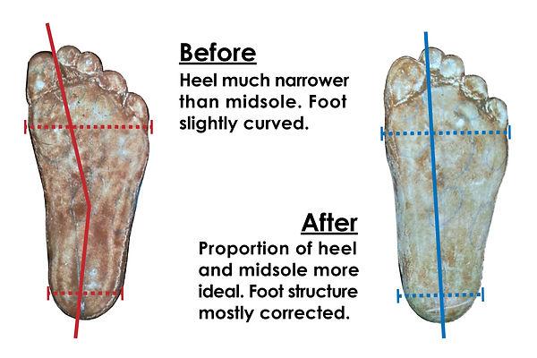 Foot mold standing-01.jpg