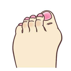 Bunion treatment singapore, overlapping toes treatment, hallux valgus treatment, hammer toes treatment