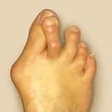 G3 - Overlapping toes-01.jpg