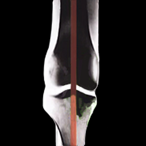 knee xray 1 - square.png