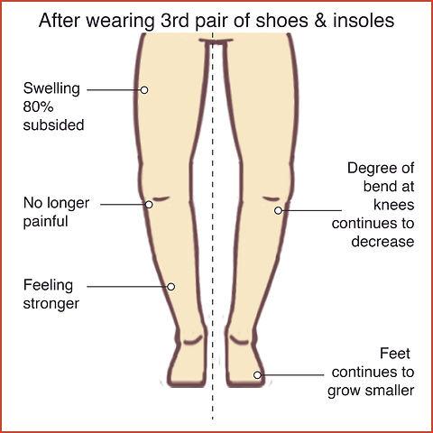 Knee Osteoarthritis 4.jpg