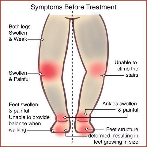 Knee Osteoarthritis 1.jpg