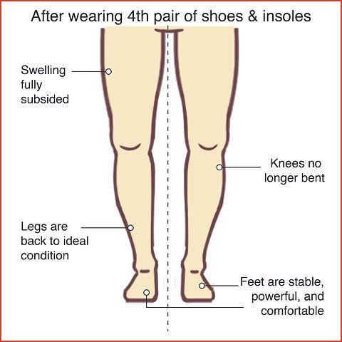 Knee Osteoarthritis 5.jpg