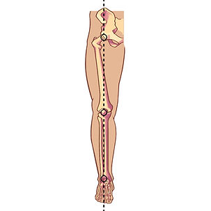 Leg alignment - wix-01.jpg