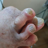 G4 - Bunion w overlapping toes - severe-