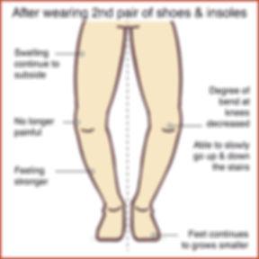Knee Osteoarthritis 3.jpg