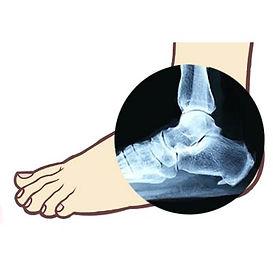 heel spur treatment, foot pain treatment