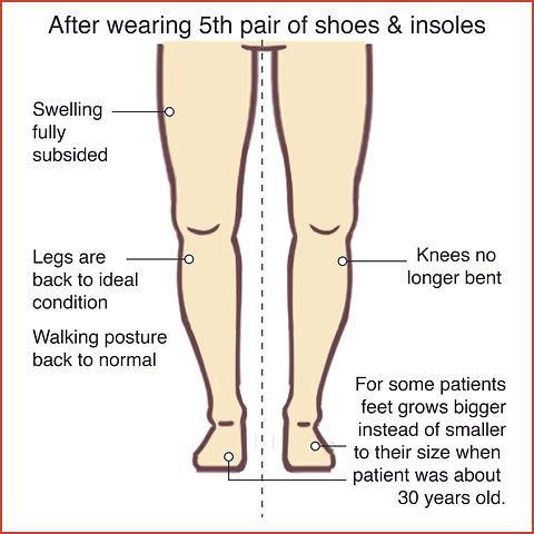 Knee Osteoarthritis 6.jpg