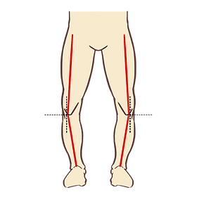 bow legs.png