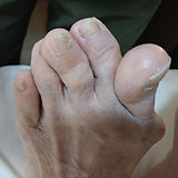 G4 - Bunion w overlapping toe - severe-0