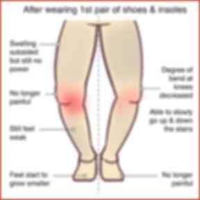 Knee Osteoarthritis 2.jpg