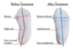Foot mold copy-01.jpg
