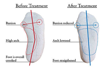 orthotic insoles, foot pain treatment, bunion treatment singapore, overlapping toes treatment, heel spur treatment, swollen feet treatment, high arch treatment, flat foot treatment, plantar fasciitis treatment, hammer toes treatment, hallux valgus treatment