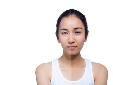 Skin Type: Rosacea