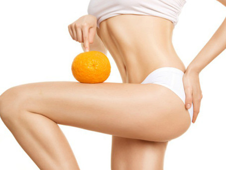 Skin Type: Cellulite