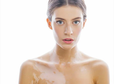 Everything You Want to Know: Vitiligo
