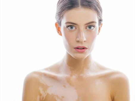 Everything You Want to Know: Vitiligo