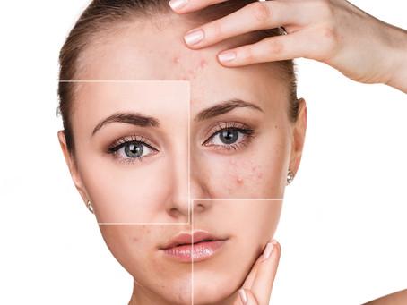 Skin Type: Acne