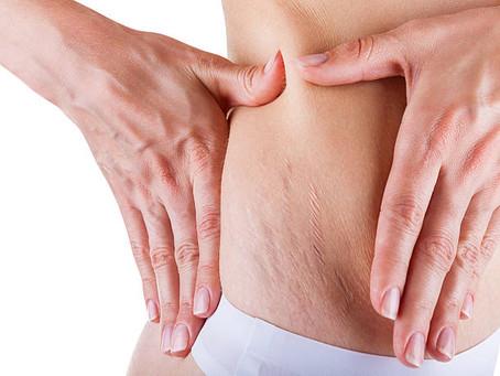 Skin Type: Stretch Marks