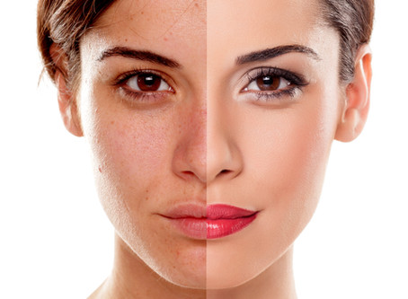 Skin Type: Darks Spots & Pigmentation