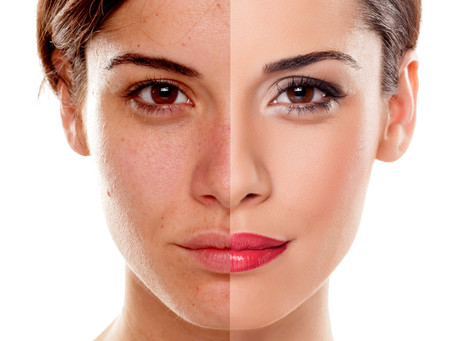 Skin Type: Darks Spots & Pigmentation