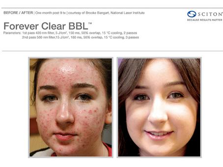 Oh Zit! Skin Worthy Treats Acne