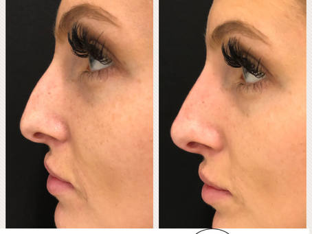 Skip The Scalpel - The Non Surgical Nose Job Is Here