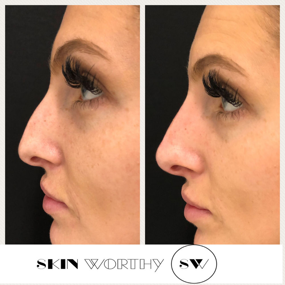 Non Surgical Nose Job Toronto