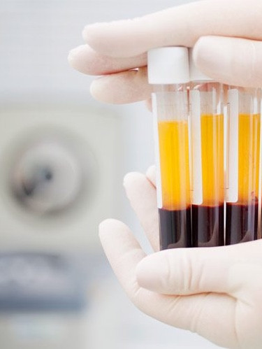 Depicted above are tubes containing PRP (liquid gold), which have been separated from the red blood cells using a centrifuge.