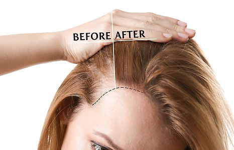prp-hair-restoration-treatment pic_edite